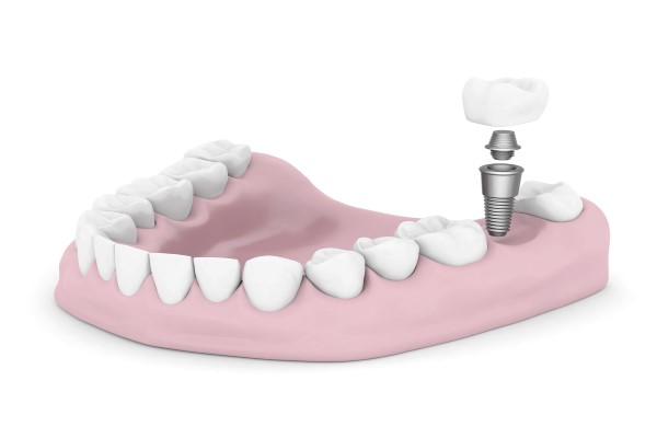 How Dental Implants Are Placed
