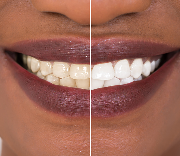 East Orange Teeth Whitening